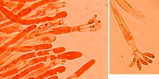 Dacryobolus karstenii,basides