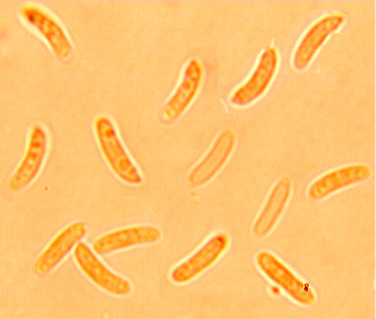 Dacryobolus sudans spores
