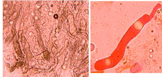 Dichostereum effuscatum gloéocystides.