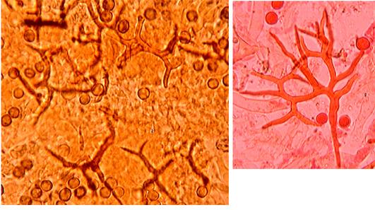 Dichostereum effuscatum, hyphes.