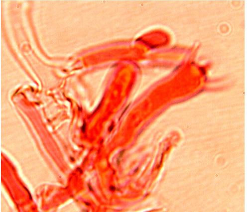 Fibrodontia gossypina baside.