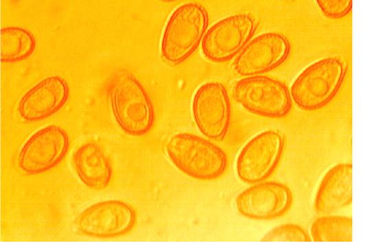 Ganoderma lipsiense ( G.applanatum) spores