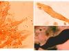 Gloeocystidiellum porosum, cystides