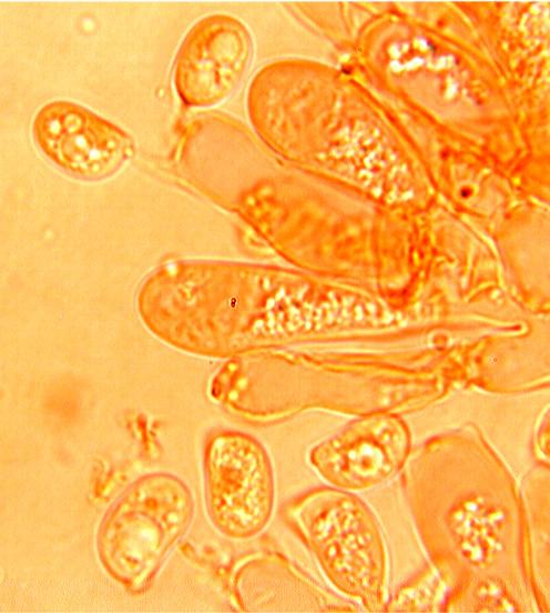 Hyphoderma argillaceum, basides.