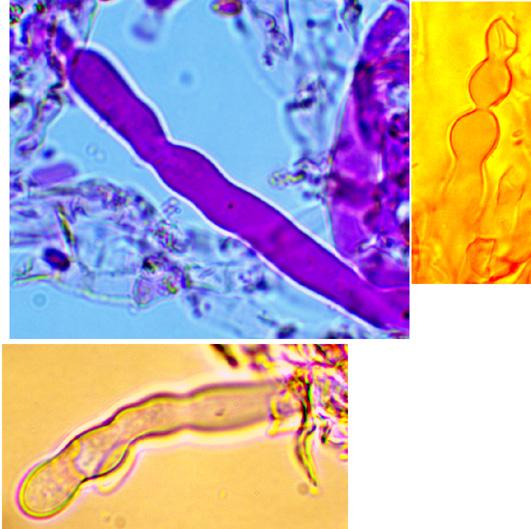 Hyphoderma litschaueri, cystides.