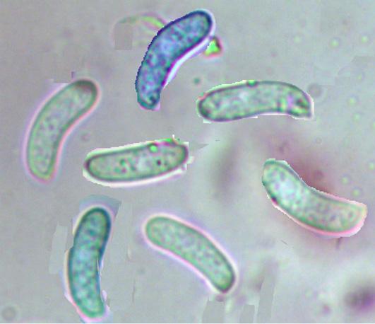 Hyphoderma mutatum, spores.