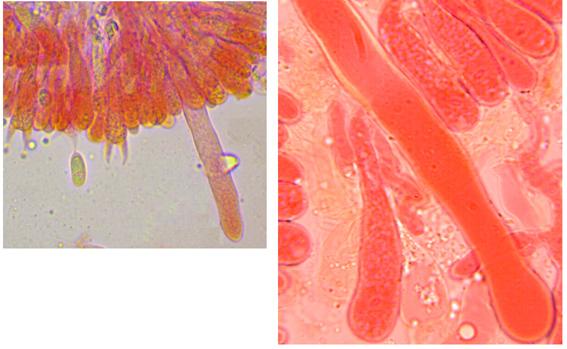 Hyphoderma roseocremeum, cystides