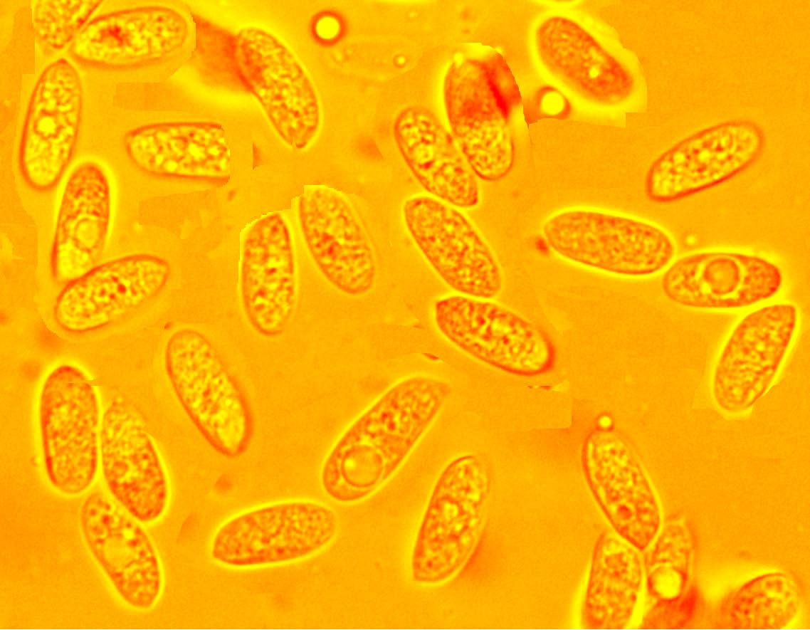Hyphoderma roseocremeum, spores.