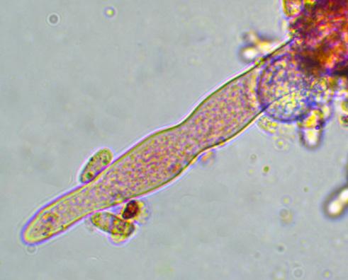Hyphoderma setigerum, leptocystide.