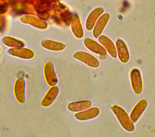 Hyphoderma setigerum, spores.jpg