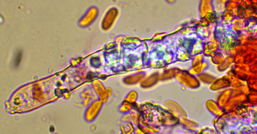 Hyphoderma setigerum,septocystides.