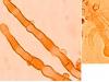 Hyphodontia pallidula, cystides.