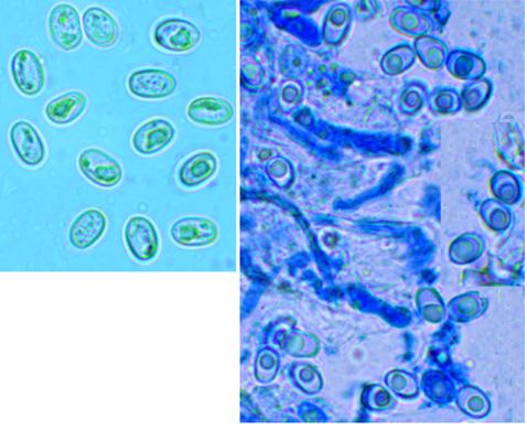 Hypochnicium geogenium, spores.