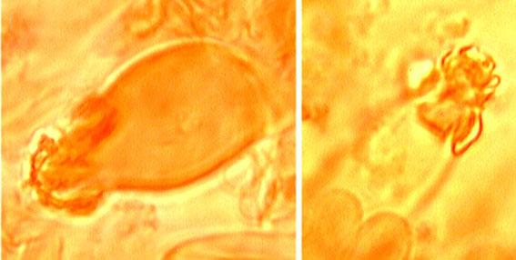 Lamprocystides ventrues-fusiformes à paroi épaisse,  sommet fortement incrusté .
