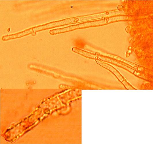 Leptocystides cylindriques, obtuses à paroi mince, finement incrustées, pourvues de cloisons bouclées.