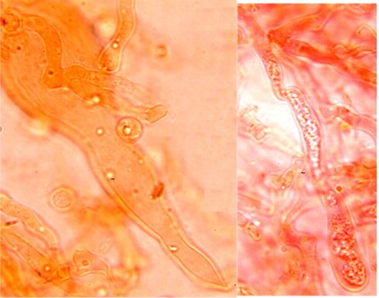 Gloeécystides de forme et de taille variable, sans réaction à la sulfo-vanilline.