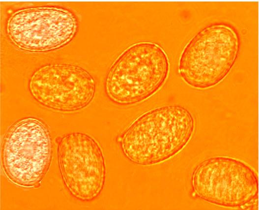 Spores ellipsoïdes à globuleuses avec des pointes irrégulières, amyloïdes