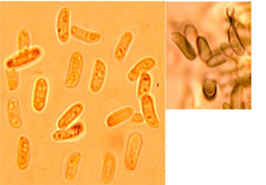 Spores cylindriques, lisses, paroi mince, amyloïdes.