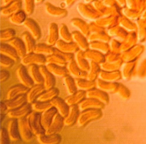 Spores cylindriques à allantoïdes, lisses à paroi mince