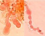cystides_hyphoderma_radula