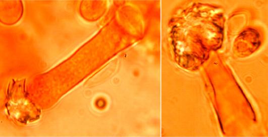 Leptocystides cylindriques avec un sommet arrondi souvent incrusté