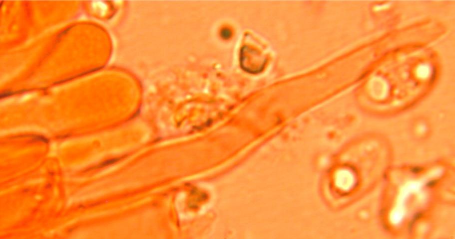 Cystides étroitement subulées à paroi mince et non incrustées,sortant de l'hyménium.