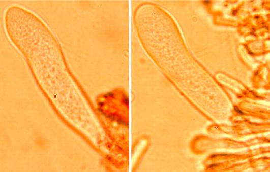 Leptocystides clavées à paroi mince, incluses dans la trame