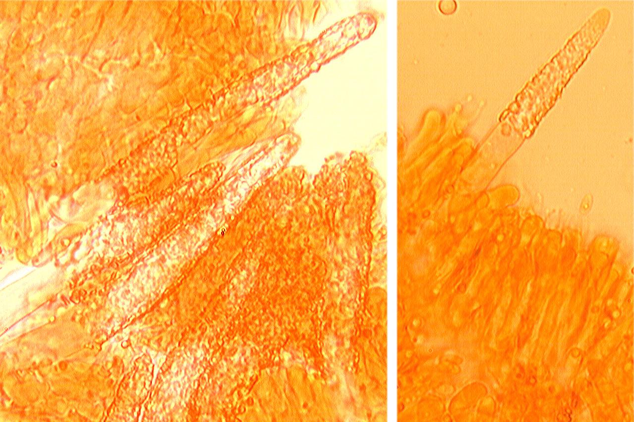 Cystides coniques, à paroi épaisse lourdement incrustées