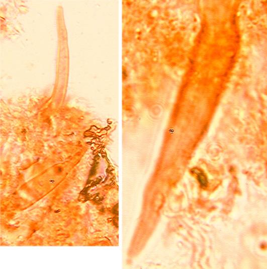 Cystides subulées épaissies dans la partie moyenne