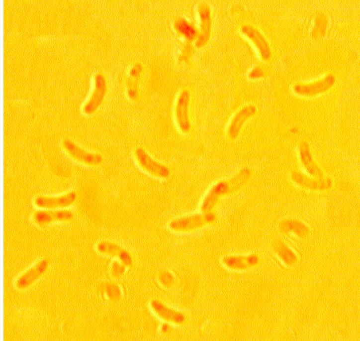 Spores allantoïdes, lisses. 3.8/4.8 x 0.9/1.3 µ