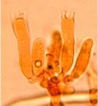 Oligoporus cerifluus, basides
