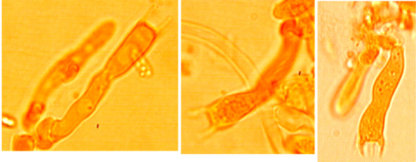 Basides clavées à quatre stérigmates