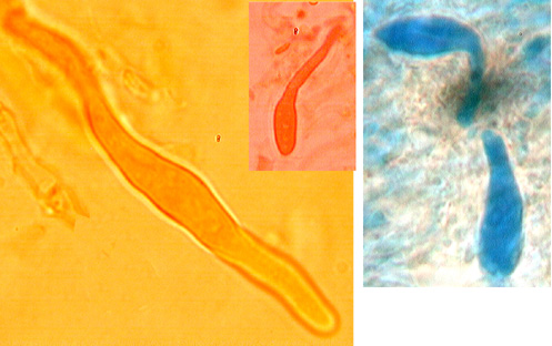 Gloeocystides présentes et incluses dans l'hymenium, rares ou abondantes, paroi mince, cylindriques à clavées et obtuses, cyanophiles