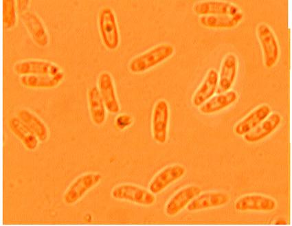 Spores cylindriques, allantoïdes. 4.4/5.5 x 1.1/1.7 µm