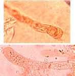 Radulomyces confluens, basides