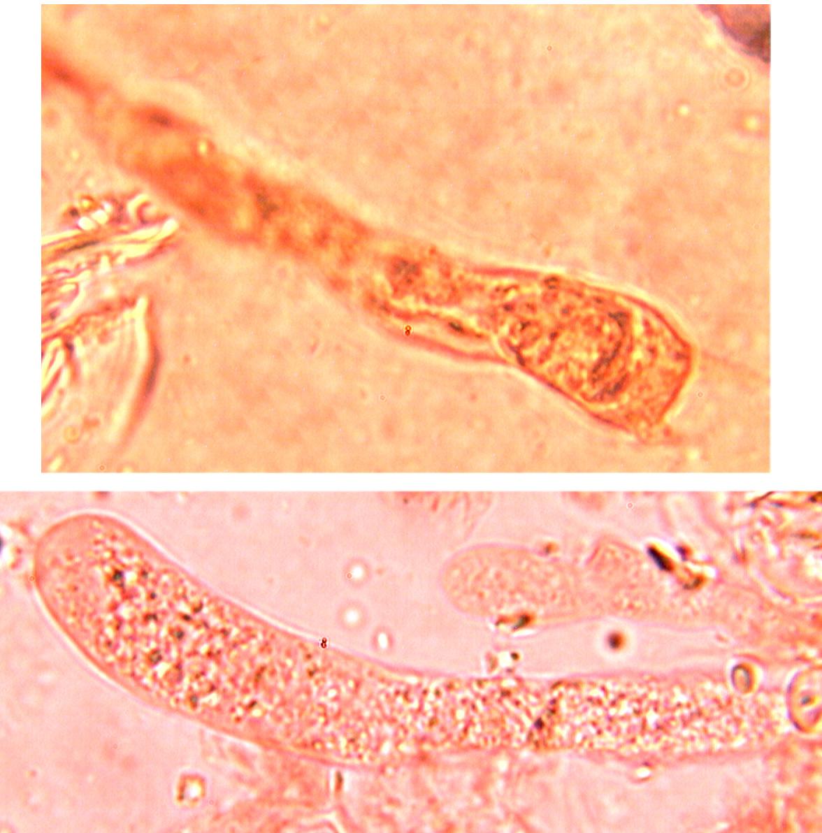 Basides clavées, sinueuses à 4 stérigmates et boucle basale et nombreuses inclusions huileuses.