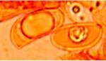 Scytinostroma ochroleucum, spores