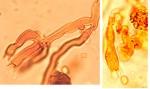 Scytinostromella heterogenea, basides