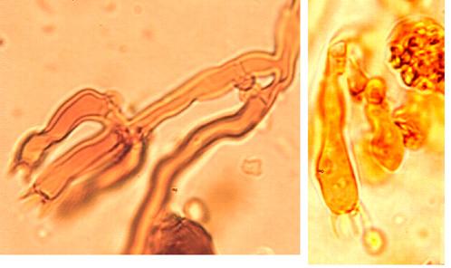 Basides suburniformes à 4 stérigmates et boucle basale