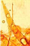 Scytinostromella heterogenea, gloeocystide