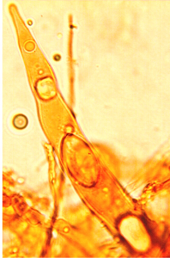 Gloeocystides cylindriques à clavées sinueuses avec des étranglements et un apex pointu, à paroi mince et à contenu granuleux.