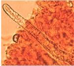 Scytinostromella heterogenea, pseudocystide