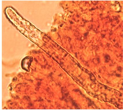 Pseudocystides issues d'hyphes squelettiques, à paroi épaisse et à partie  terminale incrustée; pénétrant dans l'hymenium