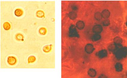 Spores largement ellipsoïdes à subglobuleuses, échinulées et fortement amyloÏdes In litt.3.5/5 x 2.5/3.5 µm