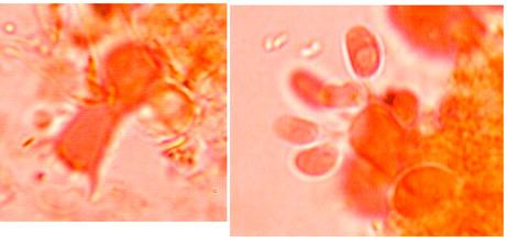 Basides urniformes à (4) 6 (8) stérigmates. Pas de cystides