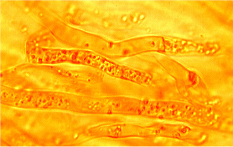 Hyphes bouclées avec contenu huileux.