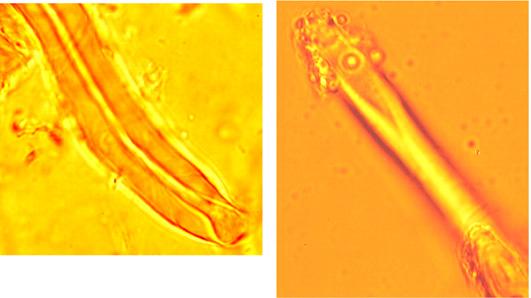 Lyocystides avec une paroi assymétrique