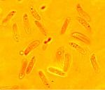 tubulicrinis_calothrix_spores