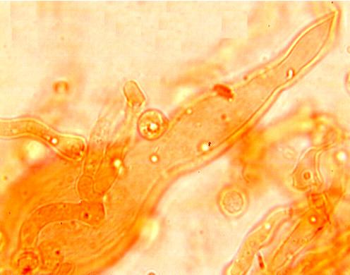 Gloéocystide vésiculaire