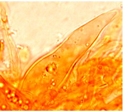Gloéocystides de forme variable